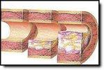 Атеросклероз и как с Ним бороться